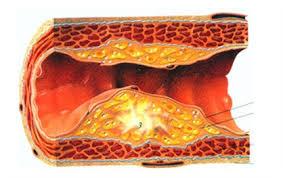 verstopte bloedvaten symptomen